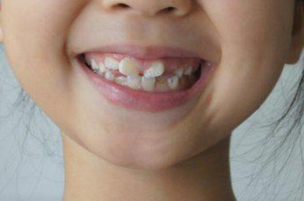 牙齿矫正任何年龄都可以做 最佳年龄是何时